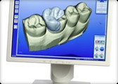 cerec filling