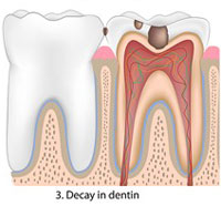 decay in dentin