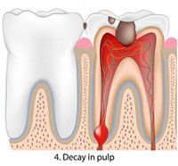 decay in pulp