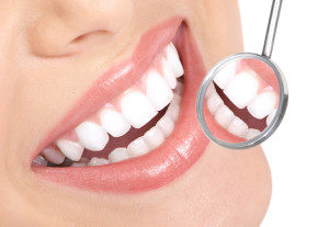 dentist whitening