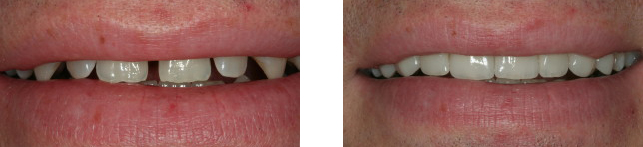 Smile makeover jaw surgery