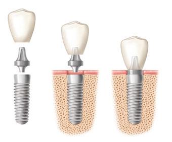 mini-implants