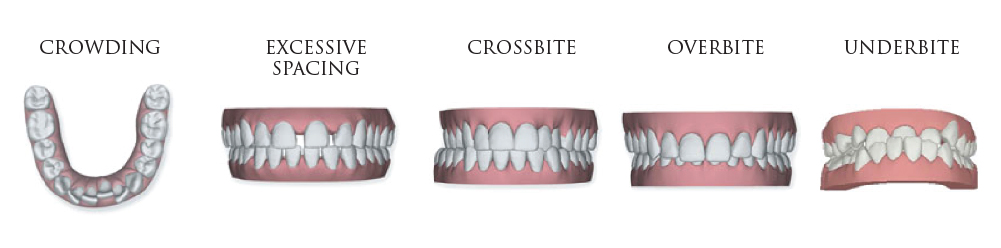 Bite Types - Melbourne Orthodontist