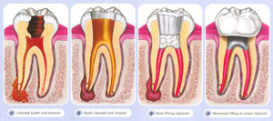 root_canal_small