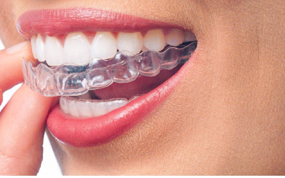 Orthodontic-Banner-06