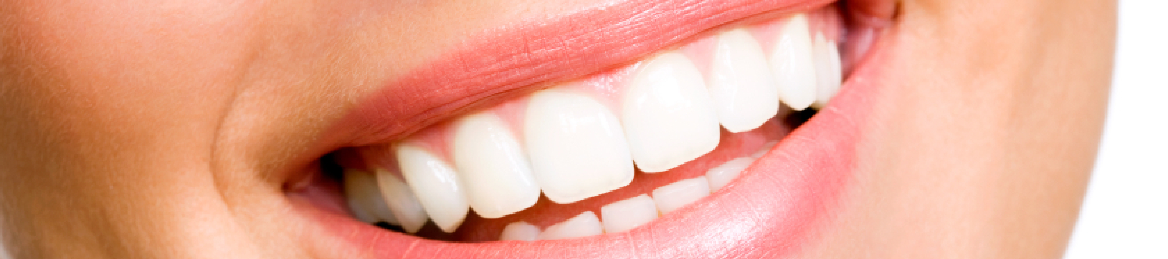 Melbourne Teeth Whitening
