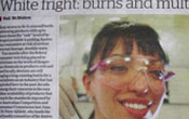 White fright: burns and multicoloured teeth