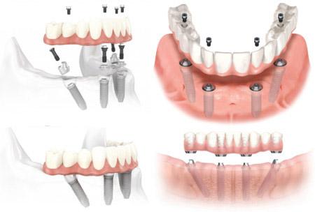 teeth in 3 days process