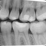 Routine Radiograph