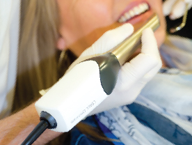 Cerec stages handheld blue-light camera