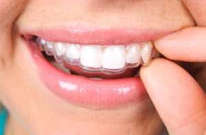 hygiene benefits of Invisalign