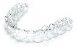 What is an Essix retainer