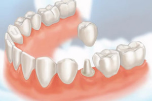 What types of dental crowns are available