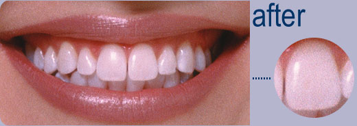after-teeth-whitening