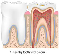 healthy tooth with plaque