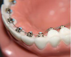 Internal Lingual Braces
