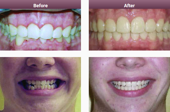 Invisalign Results & Case Studies Melbourne | Smile Solutions