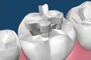 amalgam fillings with porcelain fillings