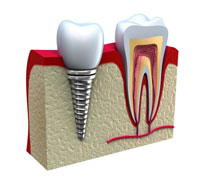 root canal therapy vs tooth extraction and implant