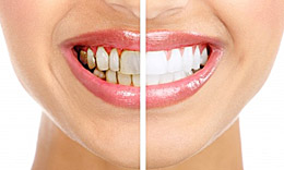 what-is-a-prosthodontist-before-after