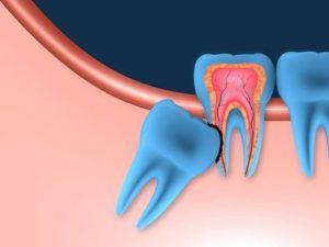 Problem wisdom tooth