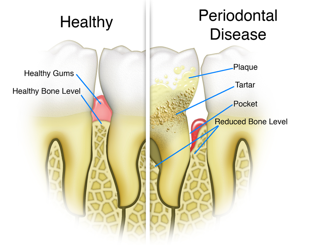 gum disease bleeding gums