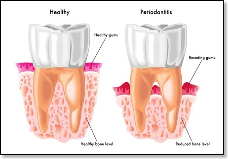periodontal disease receding gums