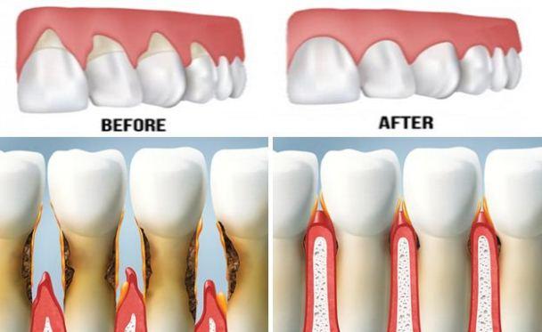 receding-gums-gum treatment