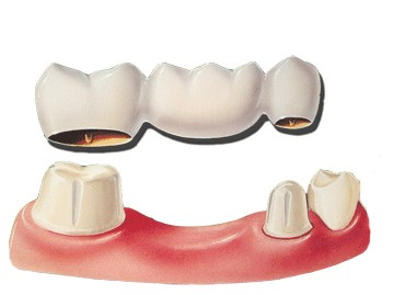 conventional dental bridge