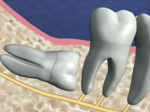 How long does it take to recover from wisdom tooth surgery ...