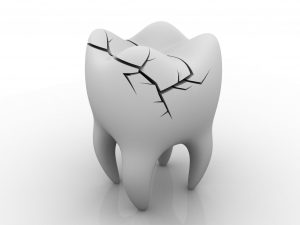 Why do teeth break or chipped?