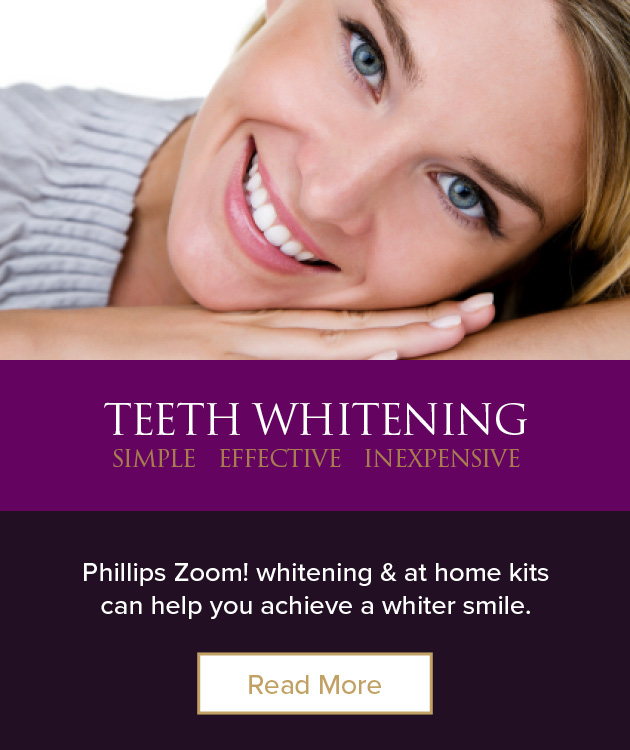 SS_Teeth_Whitening_Banner_18