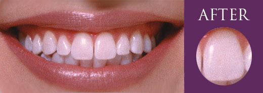 White Teeth Whitening Melbourne