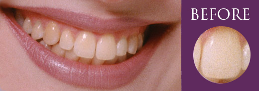 Stained Teeth Whitening Melbourne