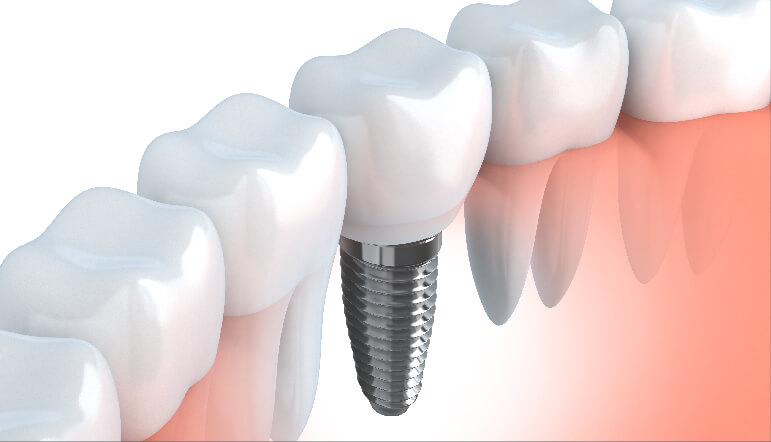 Melbourne Conventional Implants