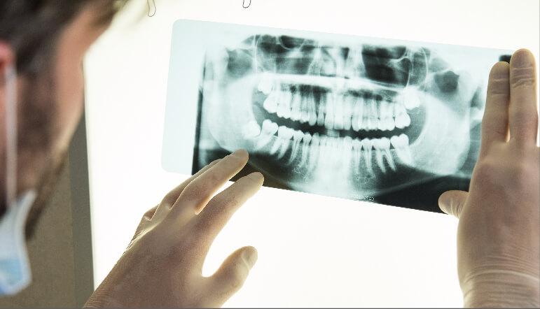 Melbourne Bone Grafting for Implants