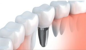 Adental implantconsists of an implant crown and an implant screw, whereas adental bridgeconsists of two crowns and one dental pontic (floating tooth that replaces the missing tooth).