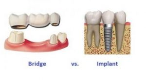 The decision whether to have a dental bridge or a dental implant depends on your unique situation. Every individual circumstance is different. Just as you are unique, so is the decision.