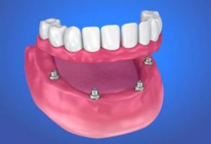 This technique makes use of four dental implants, placed in available bone, to support a complete upper or lower bridge.