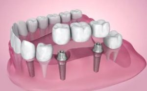 Implant-supported bridgesare the most stable means of tooth replacement.